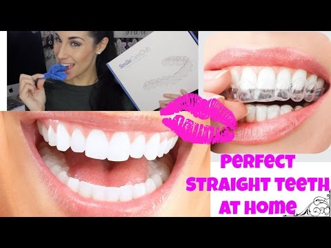 Professional Braces at Home ♡ Teeth Aligners for Straight Perfect Teeth