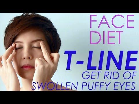 FACE DIET: 3. T-Line GET RID OF SWOLLEN PUFFY EYES กำจัดอาการบวมรอบดวงตา