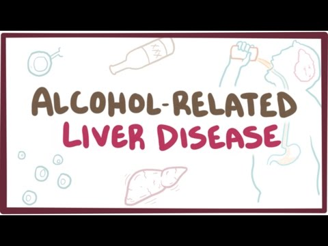 Alcohol-related liver disease - causes, symptoms & pathology