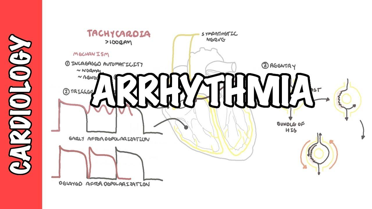 Arrhythmia Overview - Mechanism of bradyarrhythmia and tachyarrhythmia