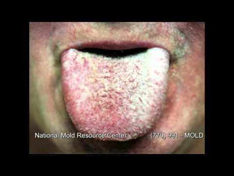 Symptoms of Mold Exposure Mold Sickness Mold Exposure Symptoms