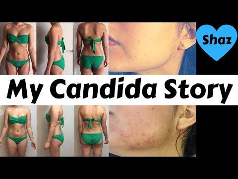 WHAT IS CANDIDA? Causes, Symptoms and My Candida Story