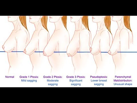 How to tighten sagging breast at home permanently fastest result no side effect