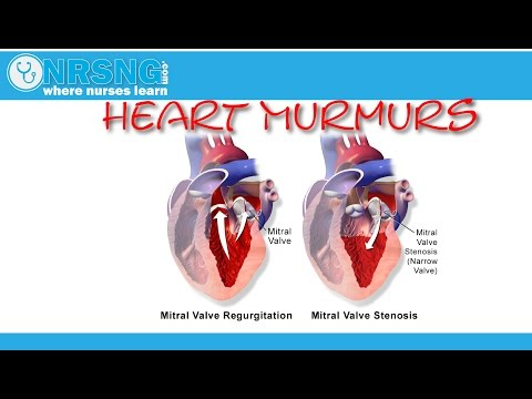 Heart Murmurs | Aortic/Mitral Stenosis, Regurgitation | How to identify