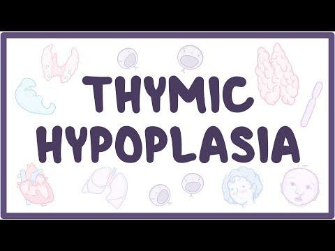 Thymic hypoplasia - causes, symptoms, diagnosis, treatment, pathology