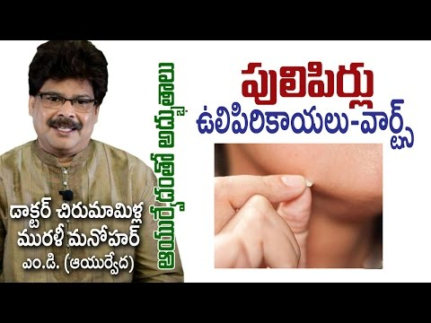 Warts | పులిపిరి కాయలు | Ayurvedic Treatment | Dr. Murali Manohar Chirumamilla, M.D.