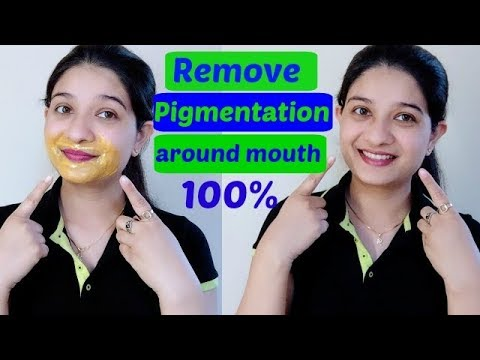 How to remove dark patches /spots / pigmentation around your mouth fast & naturally in Hindi