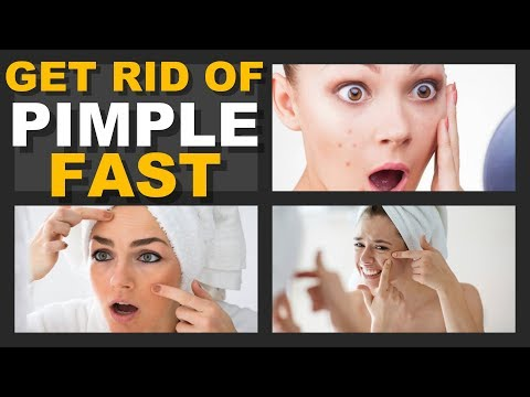 How to Get Rid of Pimples Fast?