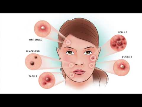 6 Different Types Of Pimples That You Should Know