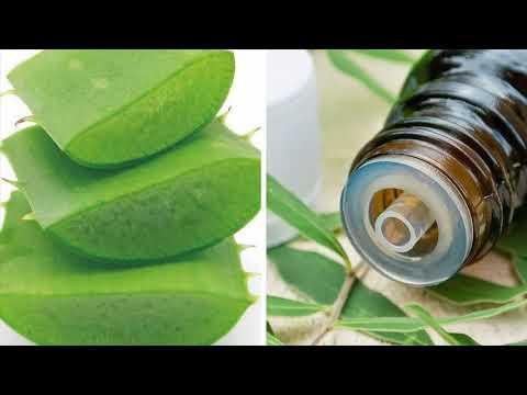 Tea Tree Oil And Aloe Vera Is Best Home Remedy To Treat Seborrheic Dermatitis Hair Loss