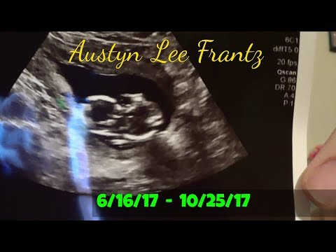 I'm No Longer Pregnant | Missed Miscarriage 15 Weeks | Storytime | 10-30-17