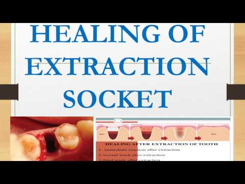 HEALING OF EXTRACTION SOCKET - Oral Pathology