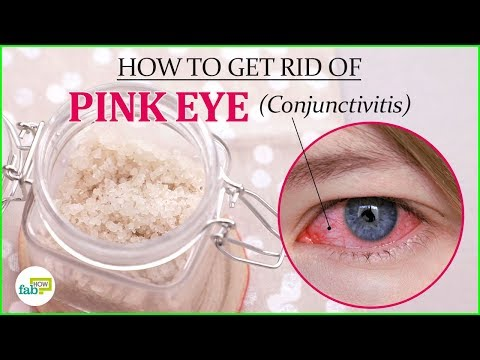How to Get Rid of Pink Eye (Conjunctivitis) without Antibiotics