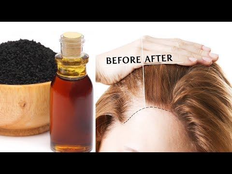 Hair Growth Tips | How To Stop Hair Fall In Just 7 Days | Hair Fall Solution and Hair Fall Treatment