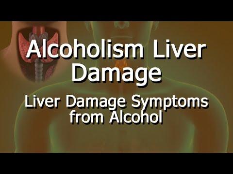 Alcoholism Liver Damage