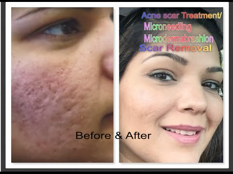 Part 1 Acne scar treatment| Micro needling| Microdermabrasion| Pimples, Skin Problems