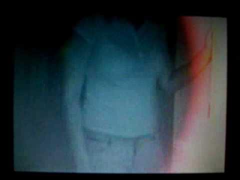 Sony X-ray camera test