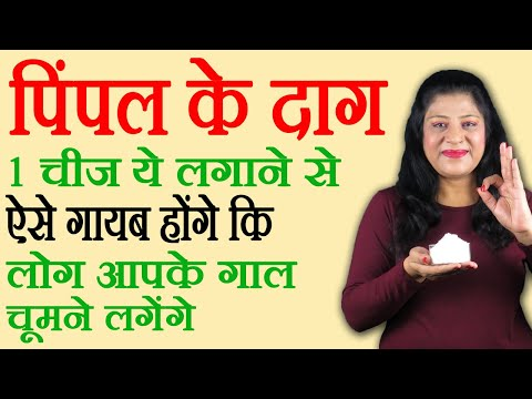 Pimple Marks | How To Remove Pimple Marks Overnight | How To Remove Pimple Marks In Hindi