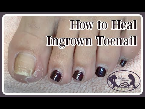 👣Pedicure Tutorial: How To Heal Ingrown at Home and Toenail Cleaning 👣