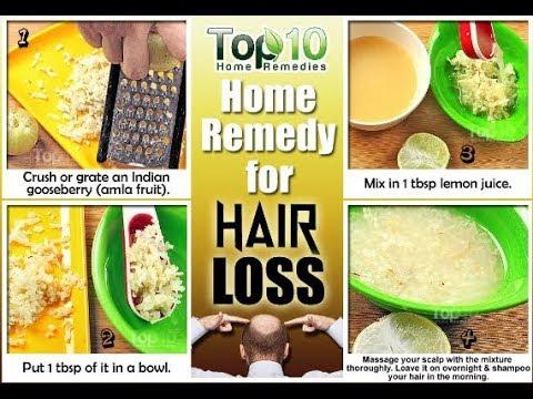 Natural Hair Loss Treatment - 11 Natural Remedies for Treatment of Hair Loss - Hair Loss Treatment