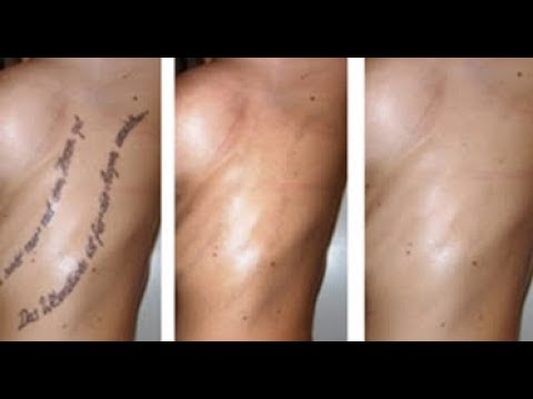 how to remove tattoos at home naturally