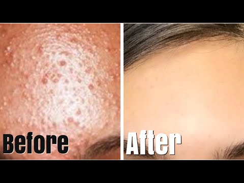 HOW TO REALLY GET RID OF SMALL FOREHEAD PIMPLES!