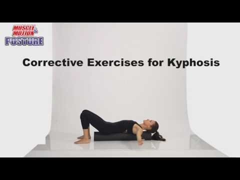 Muscle&Motion POSTURE, Kyphosis, Lordosis