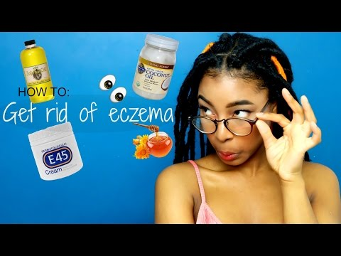 How to get rid of eczema!!!
