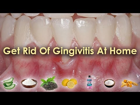 How to Get Rid of Gingivitis at Home | Gingivitis Treatment