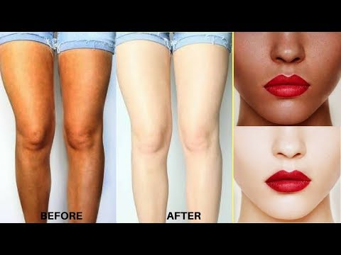 How To Remove Sun Tan Instantly | Get Fair Hands, Legs & Body | Remove Sun Tan At Home