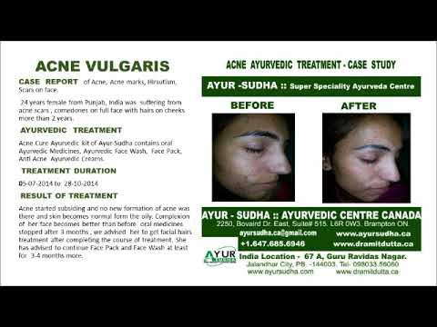 Ayurvedic treatment for Acne Vulgaris, Rosacea, Cystic Acne at Brampton, Canada