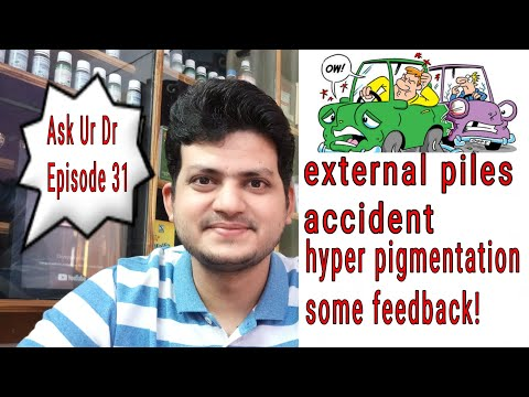 Ask Ur Dr. Episode 31 ! external piles ! accident ! your feedback 🤔