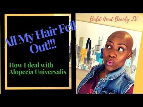 My Hair Loss Story Alopecia Universalis