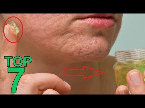 The Top 7 Essential Oils For Scars - Pro Oils