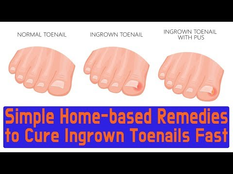 Simple Home based Remedies to Cure Ingrown Toenails Fast