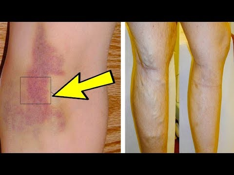 Life Changing Ways to Get Healthy with Witch Hazel Extract- Healthy Ways
