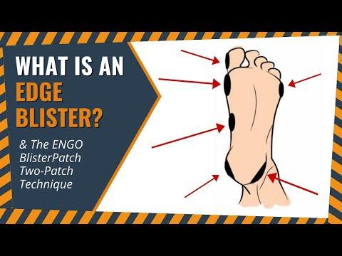 Edge blisters (2-Patch Technique)
