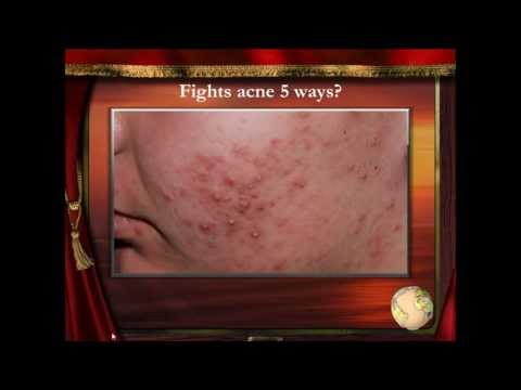 Acne Removal Treatment - Acne Removal Cream - Zit Under Skin