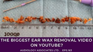 The Biggest Ear Wax Removal Video On Youtube? - Ep163