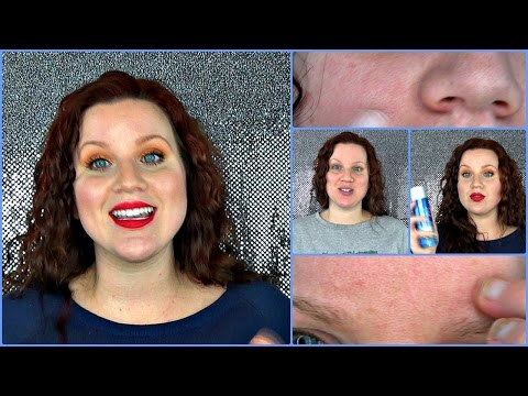 First Skin Care Routine: In Depth Paula's Choice Review. Combination Skin, Milia Sebaceous Cysts