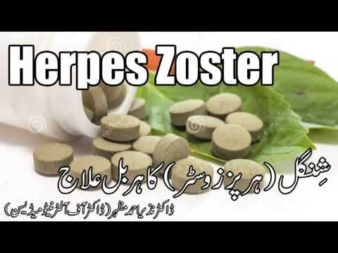 Herpes Zoster shingles herbal cure ( ہربل علاج) Dr NA Mazhar (Dr alternative medicine)