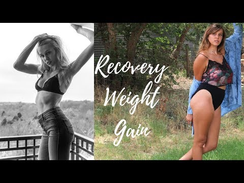 Dealing With Recovery Weight Gain