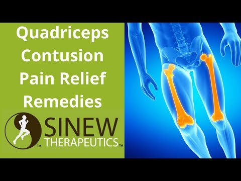 Quadriceps Contusion Pain Relief Remedies