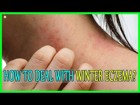 How To Deal With Winter Eczema - How To Stop Eczema Itching? | Best Home Remedies