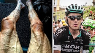 Tour de France cyclist shows off bulging veins in his legs; Signals from a nearby star - 07/21/2017