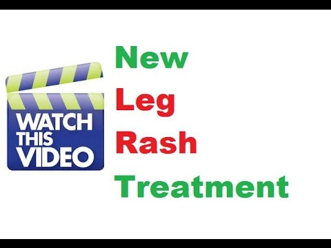 Natural Leg Rash Treatment Home Cure Remedies Skin