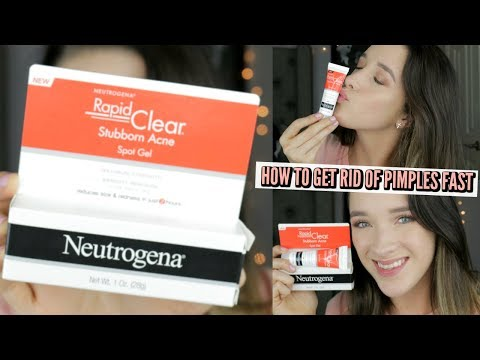 HOW TO GET RID OF PIMPLES FAST! + GIVEAWAY