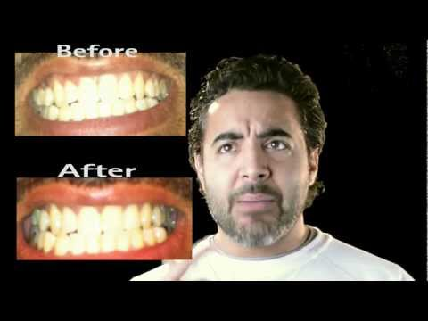 Banana peel to whiten your teeth- does it work-review