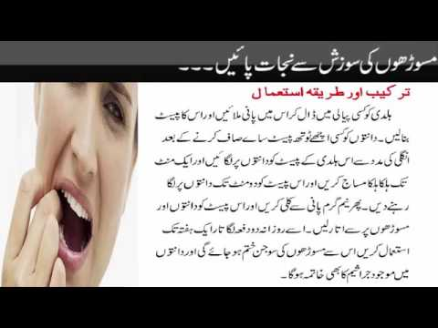 Home Remedies to Reduce Gum Swelling   Masoroh ki Sojan Ka Elaaj