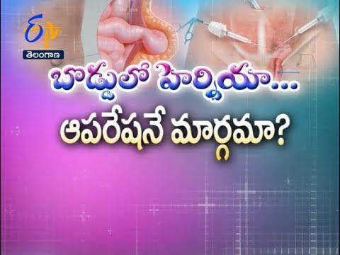 Umbilical Hernia–Treatment Options | Sukhibhava | 23rd February 2018 | ETV Telangana